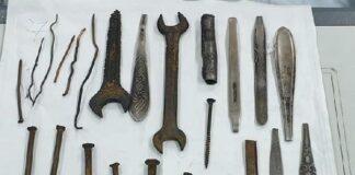 Половин кг желязо извадиха от тялото на мъж