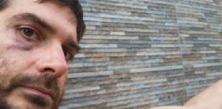 Димитър Кенаров - един от битите безпричинно и арестувани журналисти